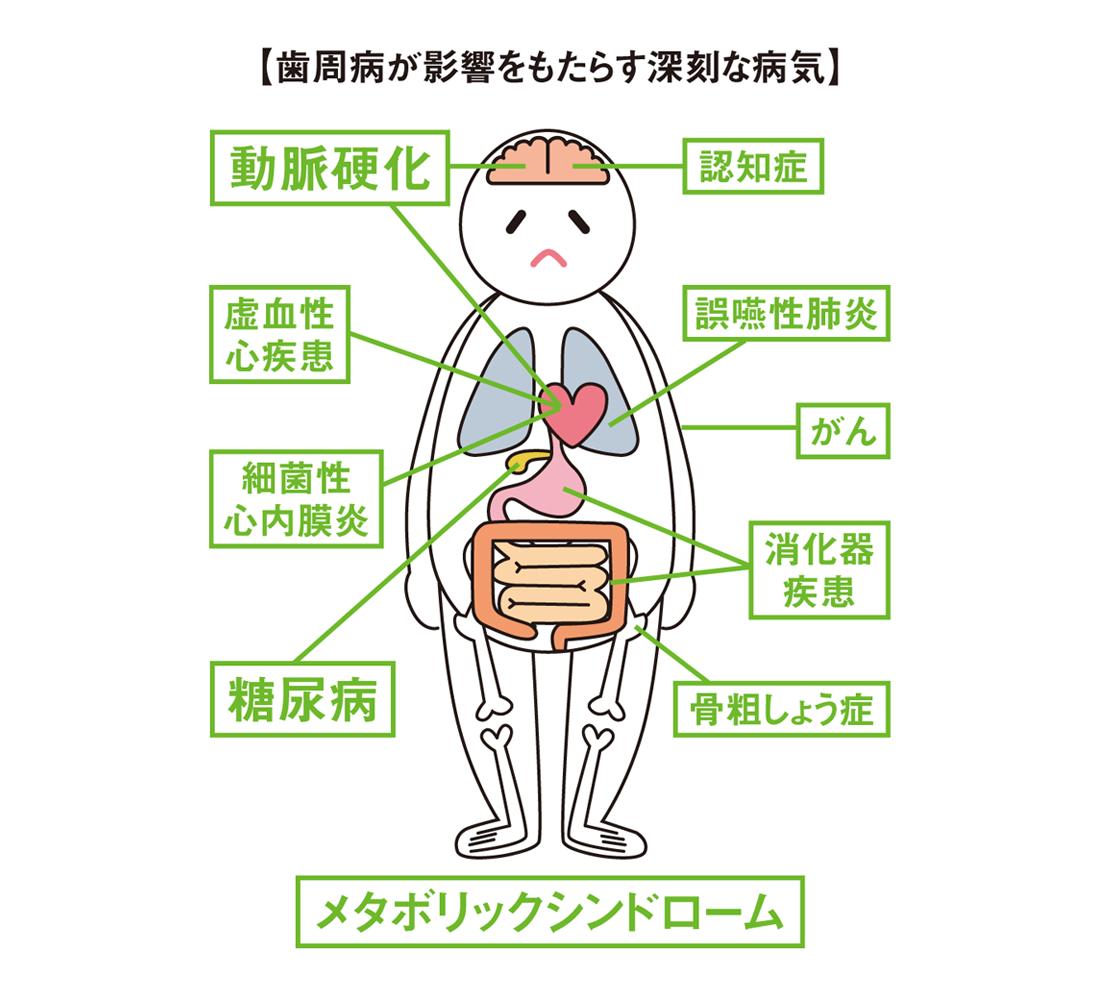 歯周病が影響をもたらす深刻な病気